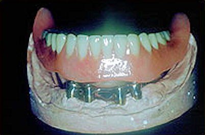 Image of seated denture implant